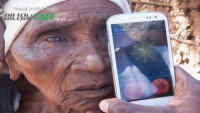 Peek Retina Akıllı Telefon ile Göz Muayenesi